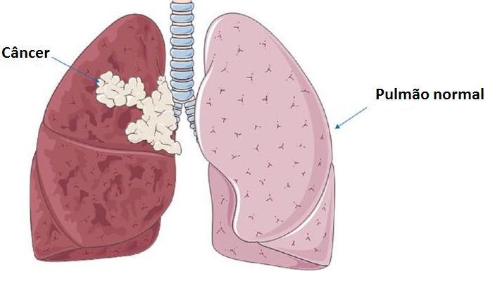 Excepcional Câncer de Pulmão | Medicina Respiratória PE91
