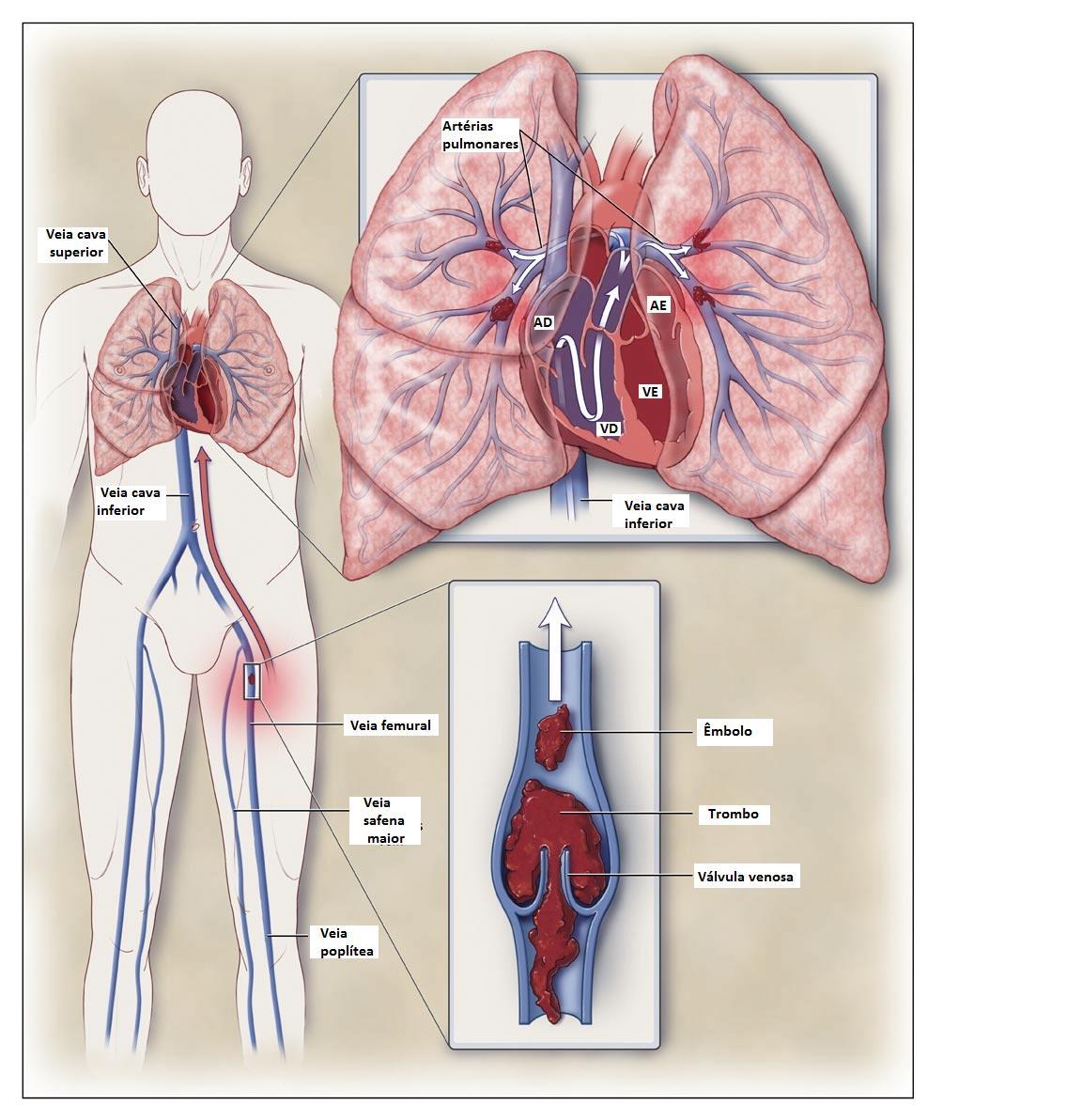 EmboliaPulmonar